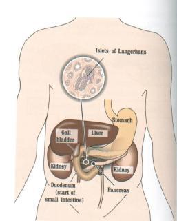 Diabeti, sëmundja e sheqerit (DIABETES MELLITUS) Fig1_sh_diabetes